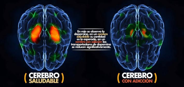 Las drogas, el cerebro y el comportamiento: La ciencia de la adicción